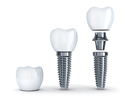 Dental Implants at Crown Hill Smiles in Seattle WA
