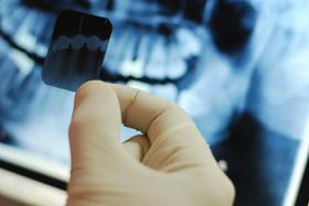 Seattle dentist reviews x-ray of teeth at dental cleaning appointment