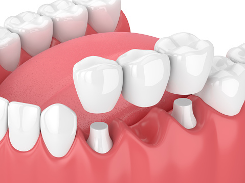 3D rendering of dental bridges in Seattle, WA